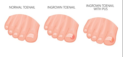 Infected Toenail Online Ingrowing Toenail Treatment I